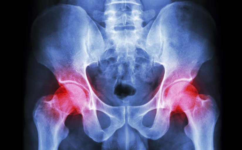 When it comes to hip replacement surgery, not all surgeries are created equal
